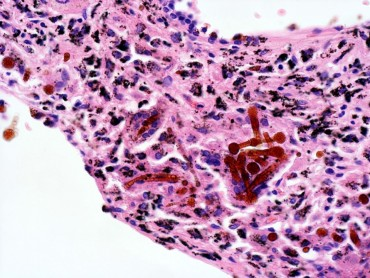 アスベストのある肺組織の顕微鏡写真(国際医療福祉大学相田真介教授提供)