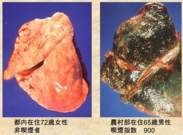 正常肺と喫煙者の肺
